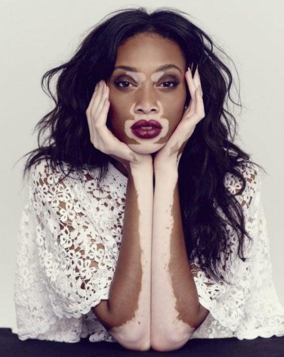 Modelo Chantelle Marrón- Young que tiene una enfermedad de pigmentación en la piel