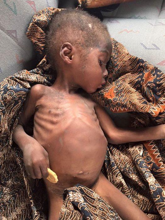 Hope el niño que fue rescatado en nigeria