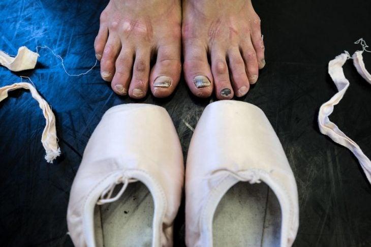 Pies desgastados de una Bailarina de ballet