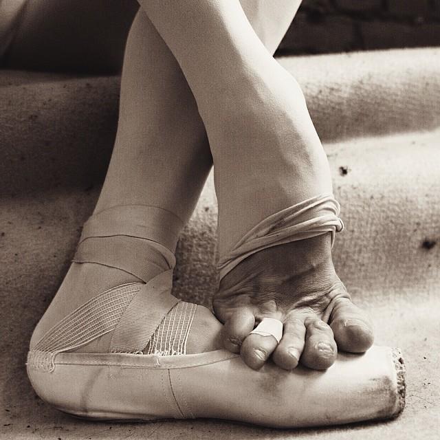 Pies maltratados de una bailarina de ballet