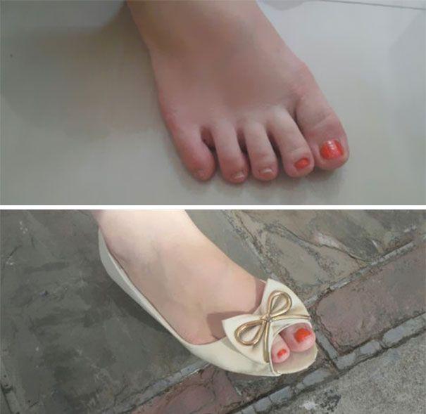 pie con solo dos uñas pintadas