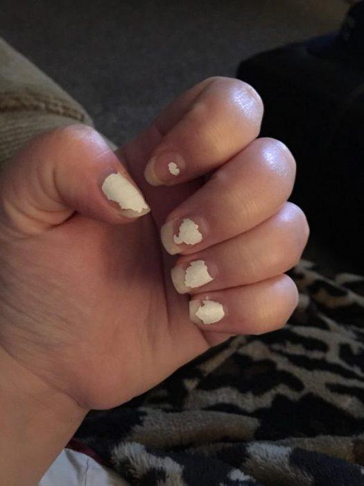 Uñas de una chica despintadas