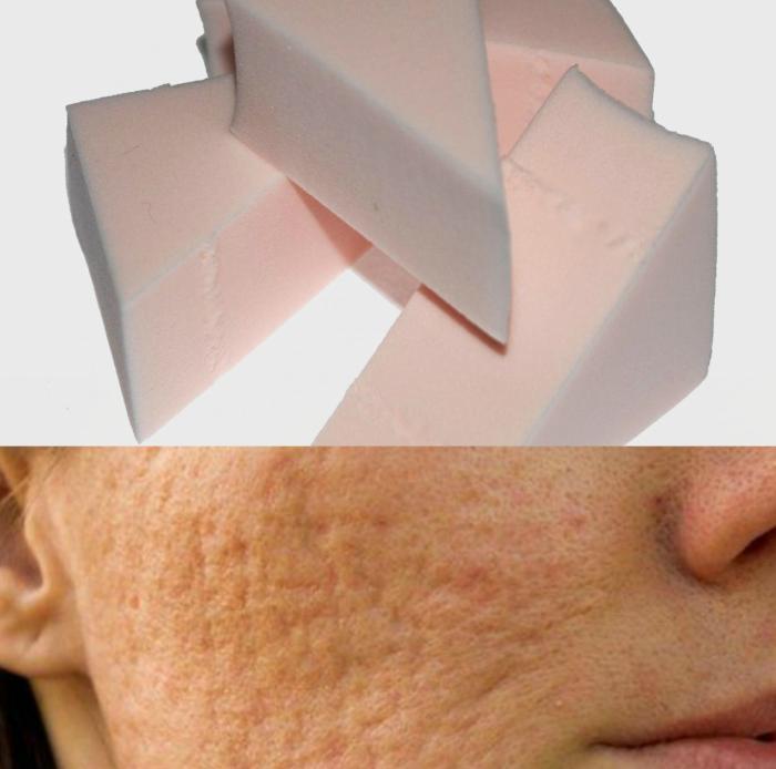 esponjas de maquillaje y mujer con cicatrices de acné
