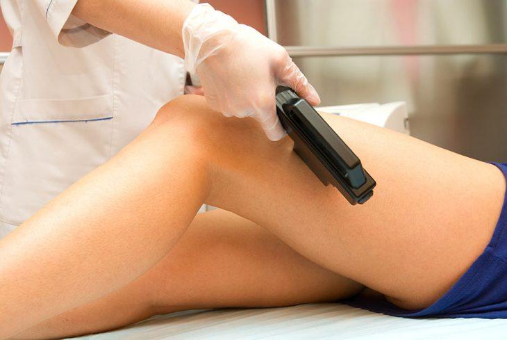 piernas acostadas con maquina laser