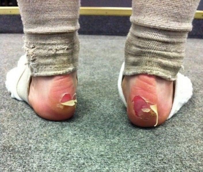 pies de bailarina lastimados