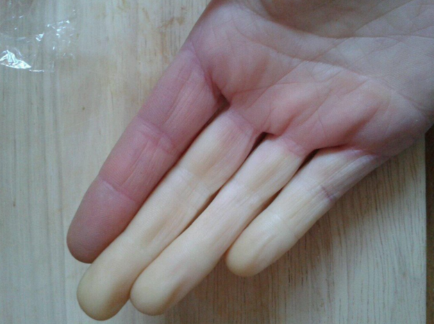 manos con sindrome de raynaudn