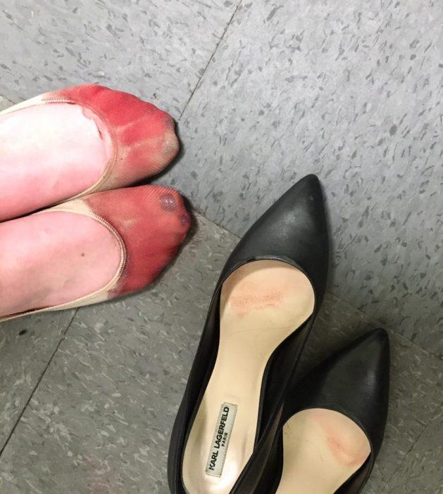 mujer con pies sangrando y zapatos de tacon