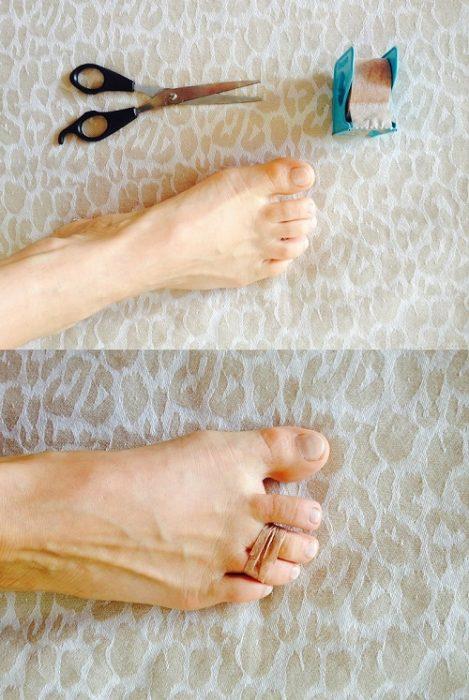 Dedos de los pies atados