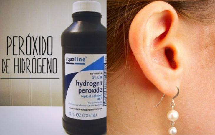 peroxido de hidrogeno y oreja con arete colgando