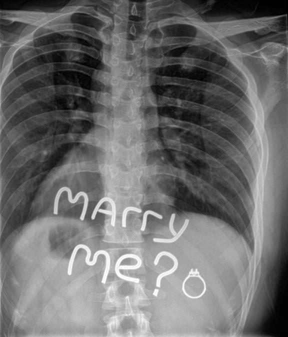 Propuestas de matrimonio en una radiografía