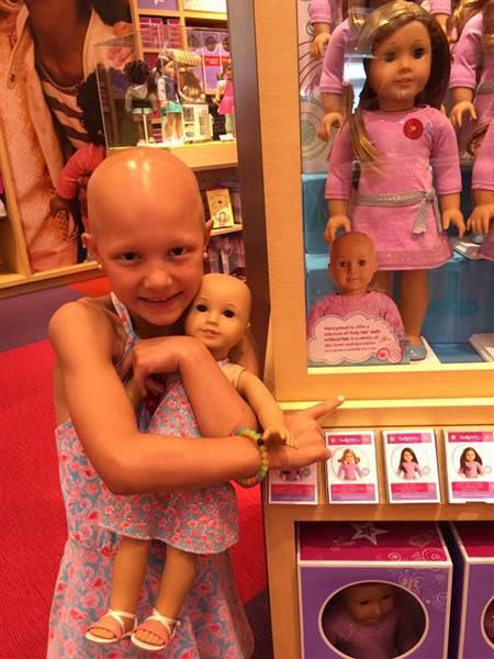 Niña que sufre de alopecia areata abrazando a su muñeca calva