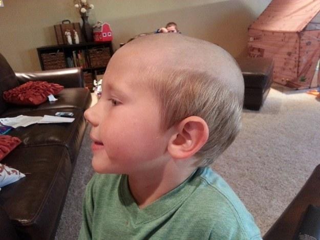 niño con media cabeza rapado