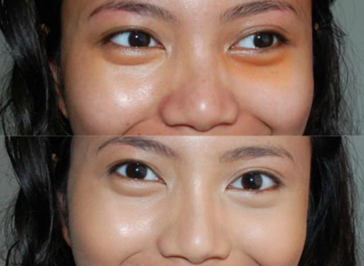 mujer con sombras naranja en sus ojeras
