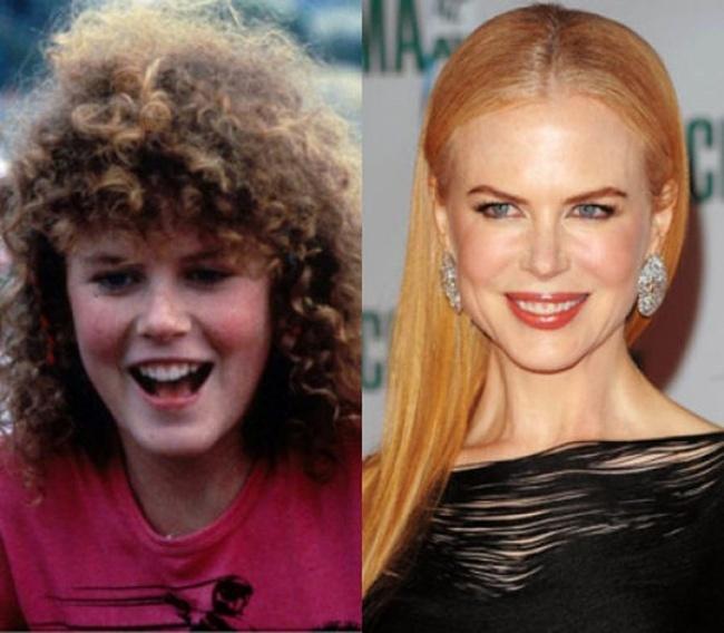Nicole Kidman antes y después