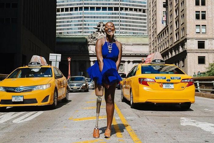 Blogger de belleza con una pierna amputada parada a mitad de la calle posando para una fotografía