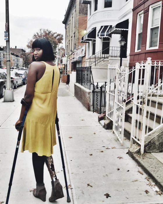 Blogger de belleza con una pierna amputada posando para una sesión de fotos