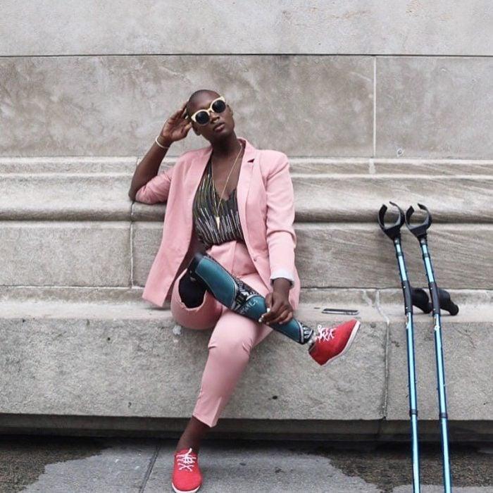 Chica con una pierna amputada es una famosa blogger de moda posando para una fotografía