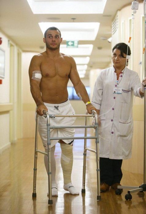 gimnasta francés fracturado