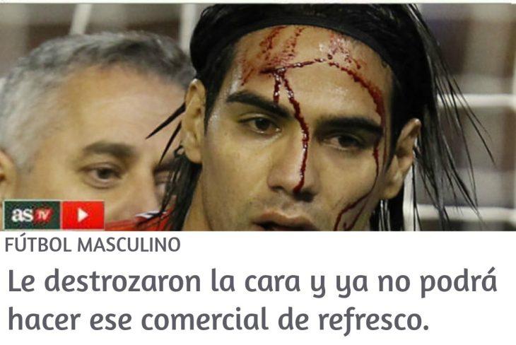 noticia en linea de jugador de fútbol sangrando