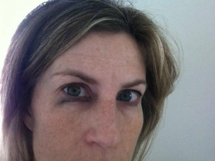 mujer blanca con ojos manchados