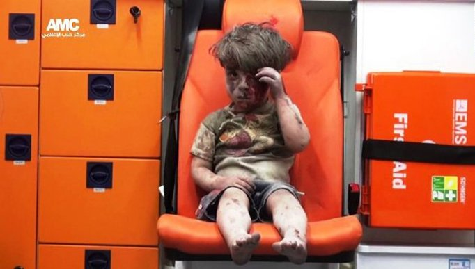 media2.intoday.in omran-dakneesh-syria_082016085852
