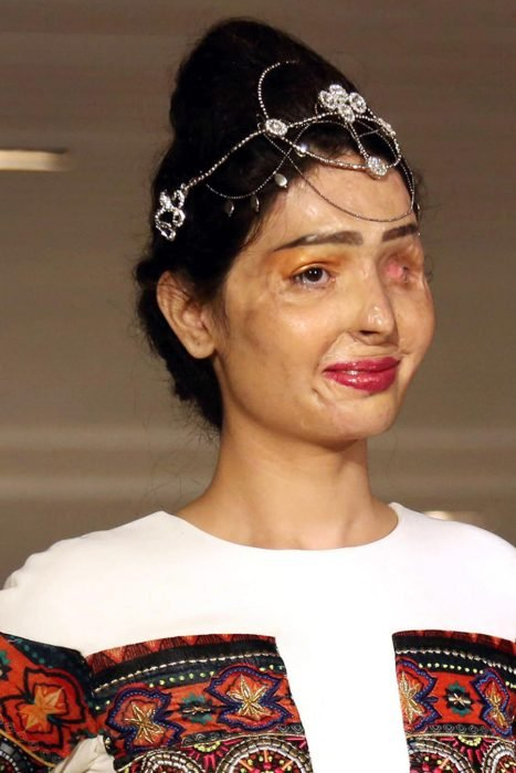 Modelo con rostro quemado desfila en pasarela