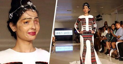 Mujer con el rostro quemado por ácido desfila en Nueva York