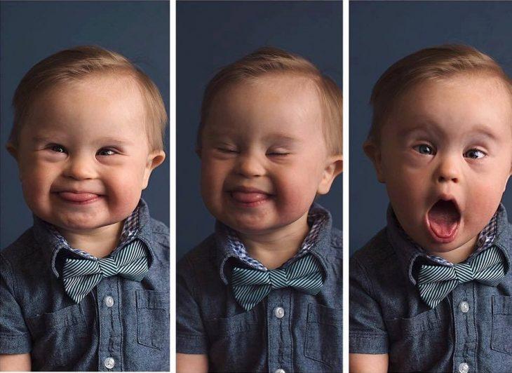 bebé con síndrome de Down