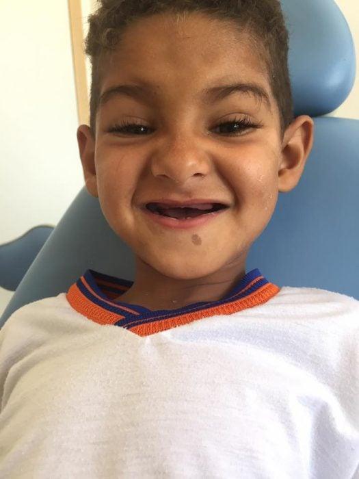 niño sonriendo sin dientes