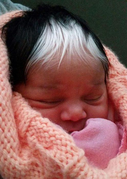Bebé con mechón blanco en la cabeza