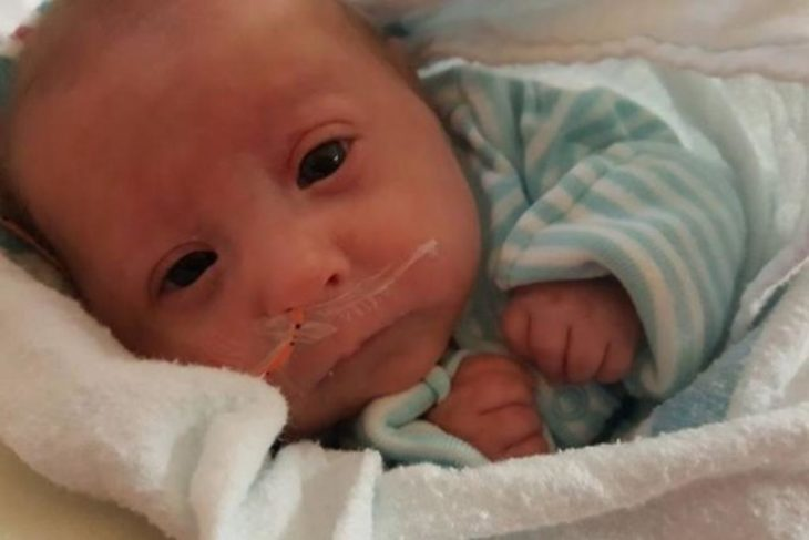 bebé que nació con enanismo respirando con la ayuda de oxigeno