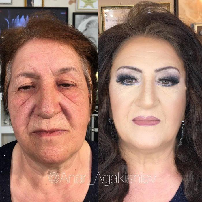 antes y después de una mujer a la que le regresaron su juventud