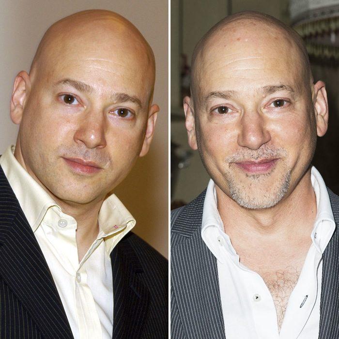 Evan Handler antes y después