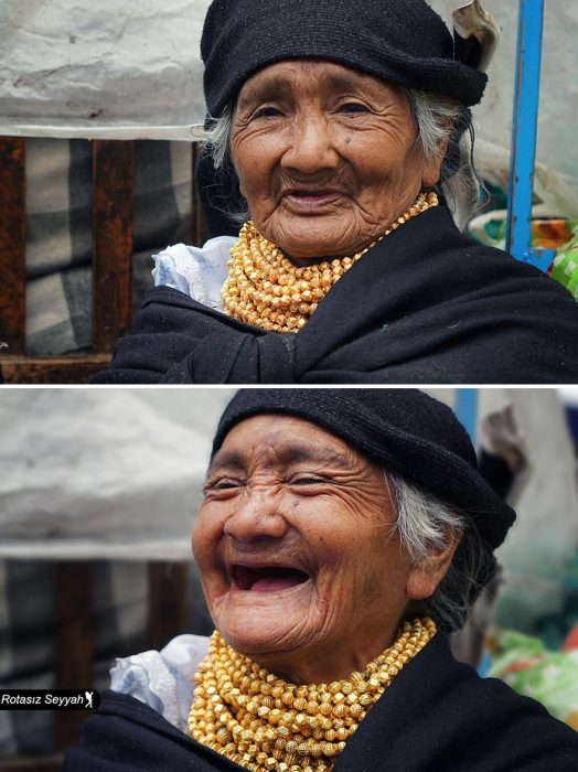 Señora sin dientes carcajeándose.