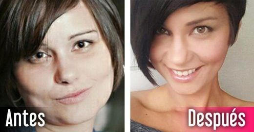 20 Fotos que demuestran la increíble transformación del cuerpo cuando dejas de tomar alcohol