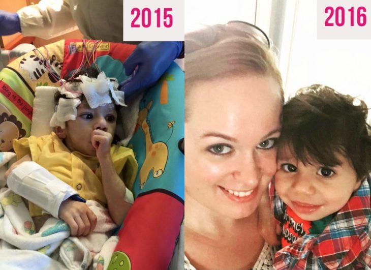 niño desnutrido y mujer rubia al lado de niño