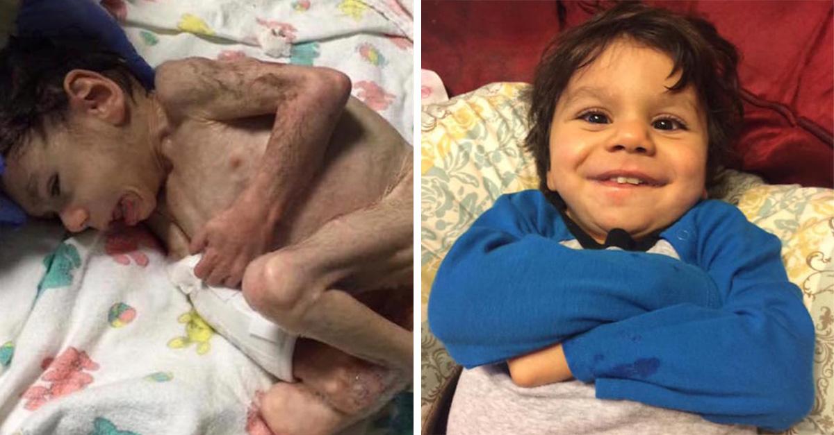 Pesaba 4 kilos antes de ser adoptado. ¡Su recuperación ha sido increíble!