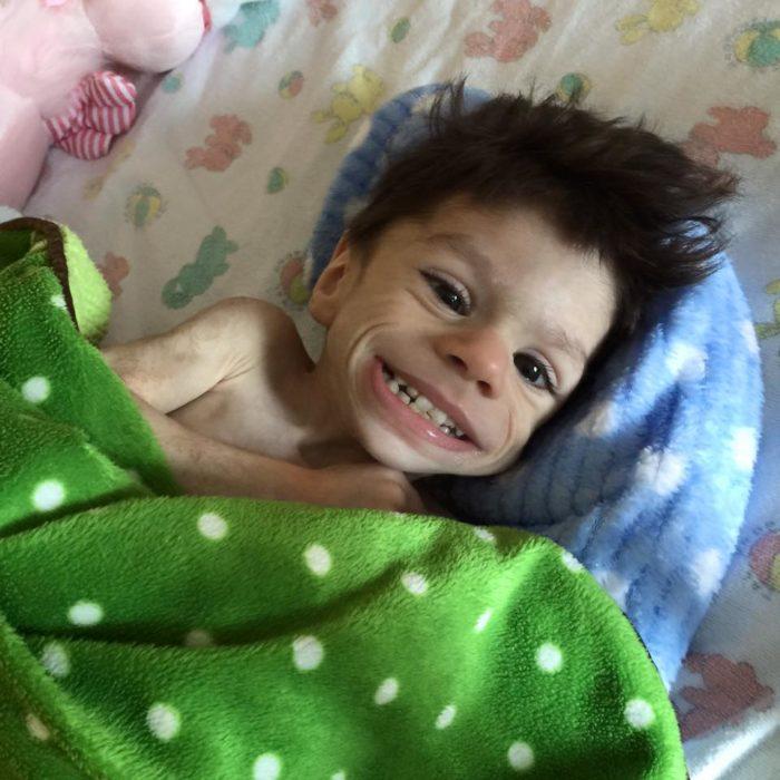 Ryan niño que sufría un alto grado de desnutrición