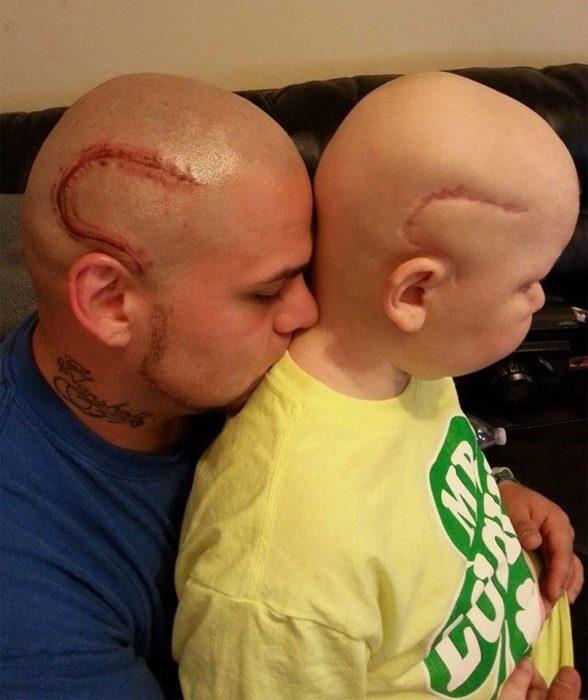 hombre al lado de hijo con tatuaje y cicatriz en la cabeza