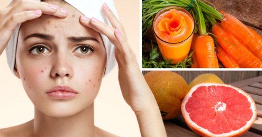 6 Alimentos que te ayudarán a eliminar el acné