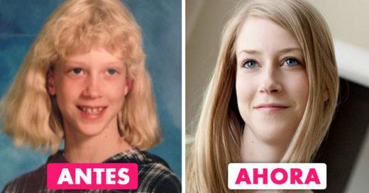 Ellas dejaron de ser un 'patito feo'; ¡su transformación es increíble!
