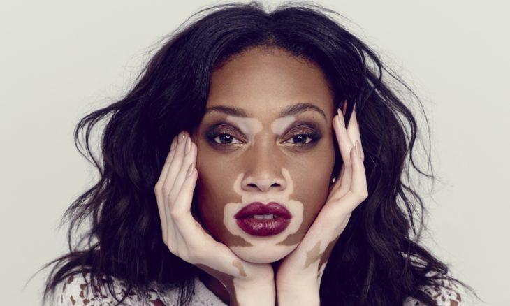 modelo con vitiligo