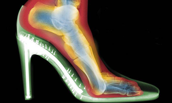daño radiografía de pies con tacones