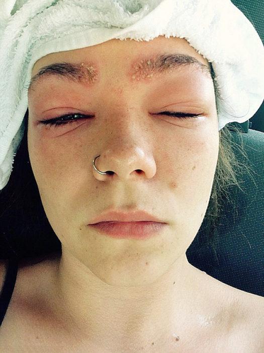Chica sufrió reacción alérgica a un tinte para cabello