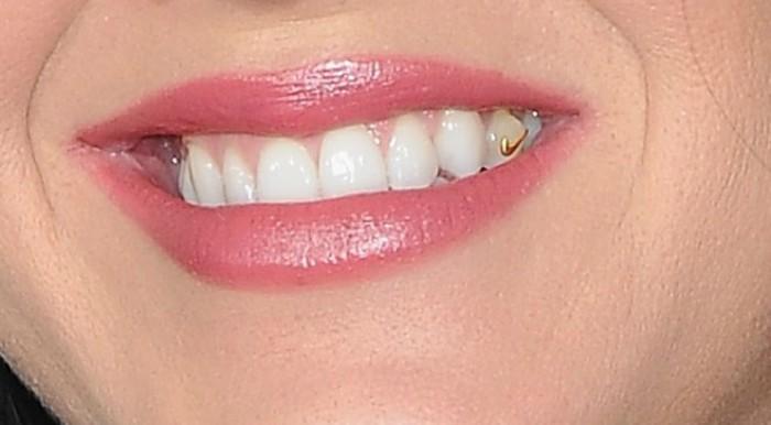 sonrisa de mujer con diente de oro