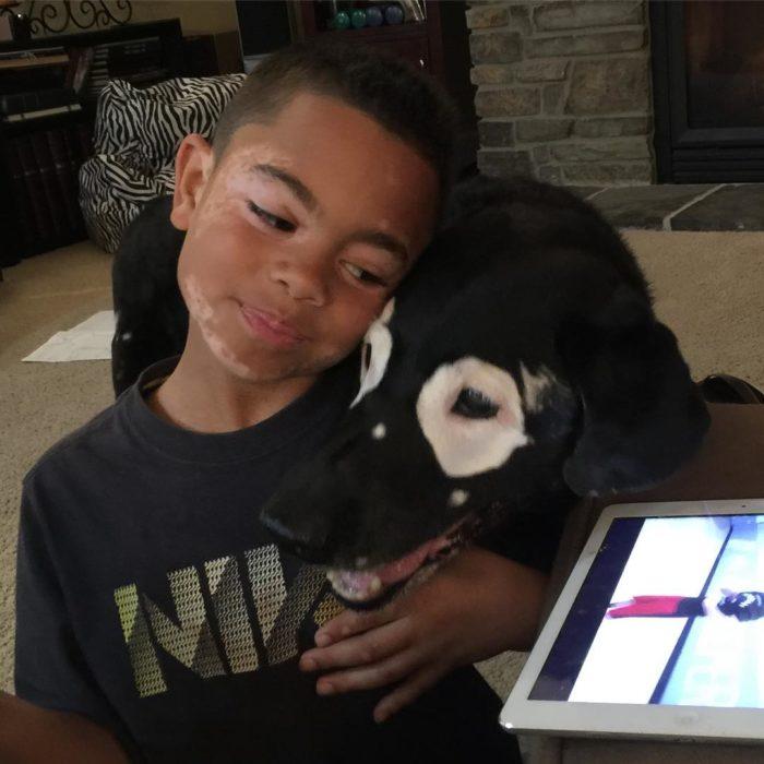 niño abrazando a perro con manchas
