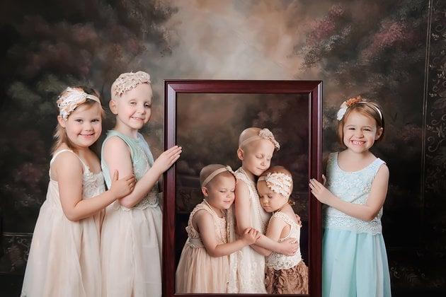 Niñas que sufrieron de cáncer