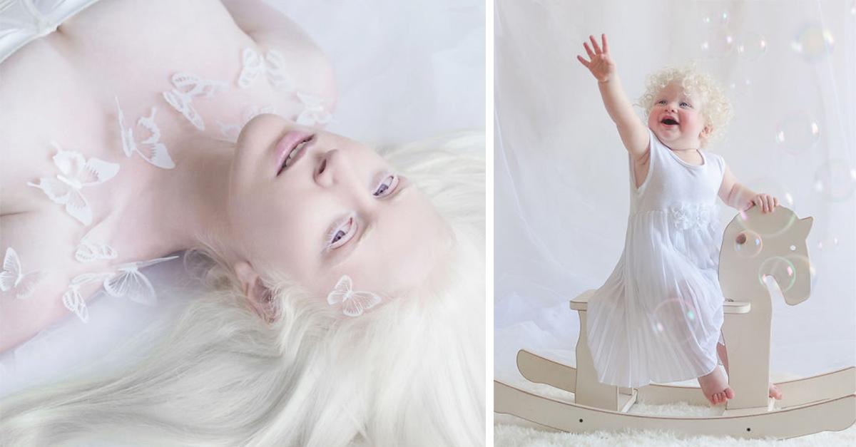 15 Fotografías que demuestran la fantástica belleza de las personas albinas