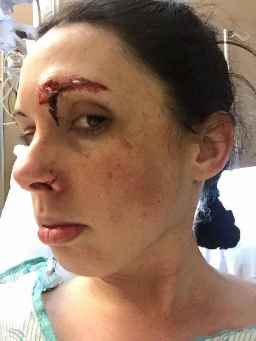 Chica que fue atacada sexualmente