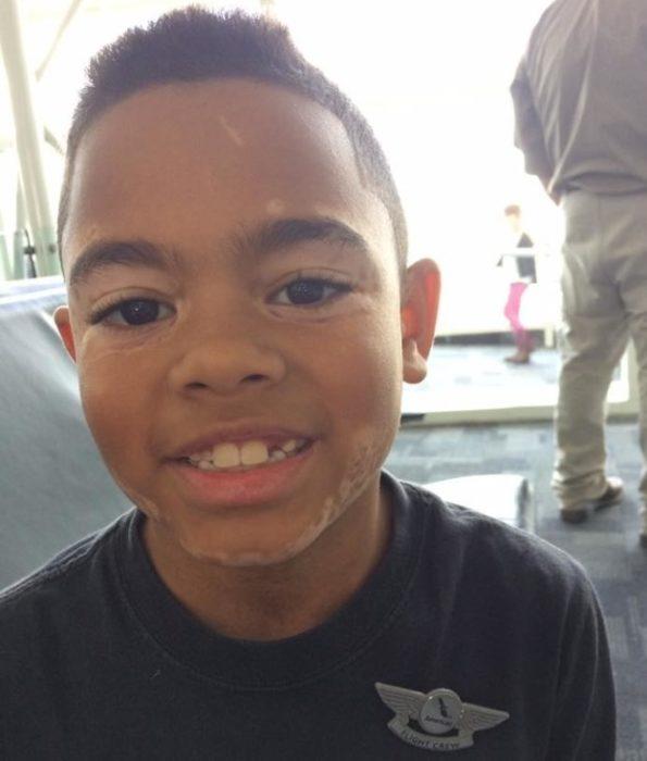niño moreno con vitiligo